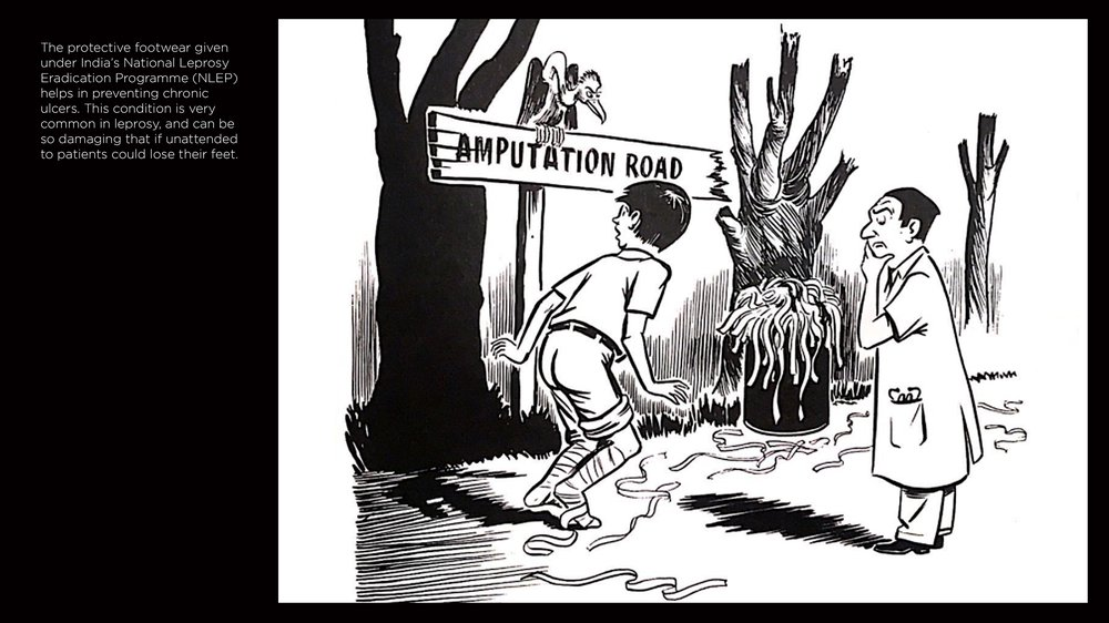 The pathway to amputation..., Insensitive Feet, Insensitive Feet: a practical handbook on foot problems in leprosy (London: The Leprosy Mission, 1981)
