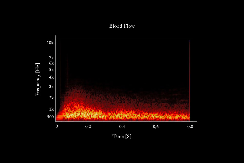 The Sound of Magma Under the Ground