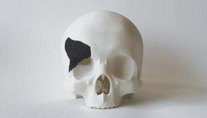 LFP Skull Scaffold