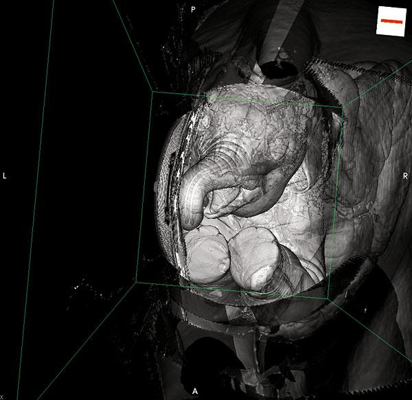 Resuscitating the Mammoth Imperator (Inside an Asian Elephant's Vocal Tract)