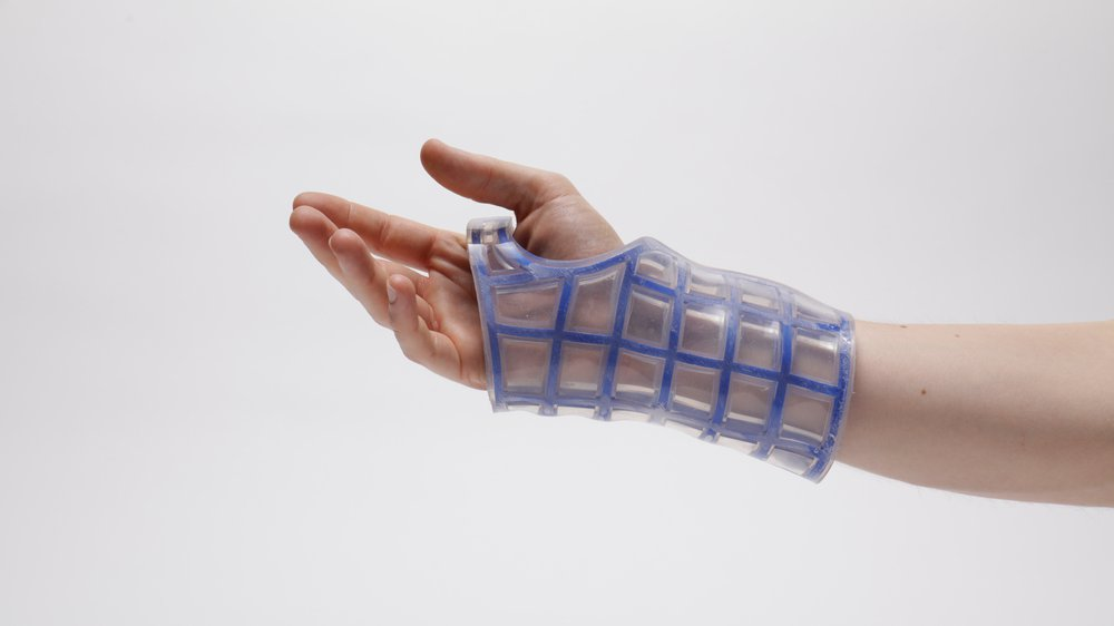 A washable, breathable, reusable cast made with re:flex